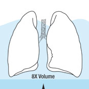 Dangers of Lung Overpressurization